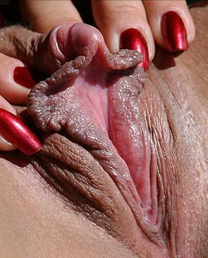 Abnormal large clitoris cunts